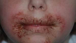LET OP: Het gebruiken van vochtdoekjes bij kinderen kan ernstige huidreacties ve