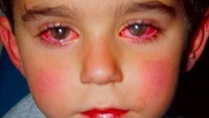 Brak tłumaczeniaLET OP: Deze jongen verloor 75% van zijn zichtvermogen door een