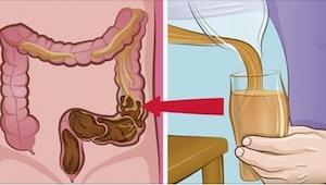 Er is niets beters tegen darmproblemen! In plaats van je vol te stoppen met medi