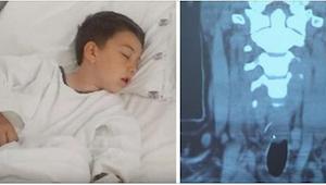 Een jongen kreeg hevige buikpijn na het eten van een hamburger. In het ziekenhui