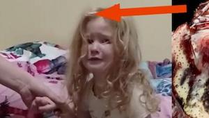 Dit meisje verloor de kracht in haar benen en was verward. De reden, dokters von
