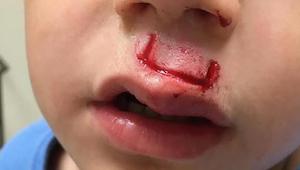 Populair speelgoed kwetste zijn zoon recht in het gezicht - nu waarschuwt de vad