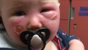 Voorzichtigheid! Een moeder waarschuwt andere ouders voor zonnebrandcrème - het
