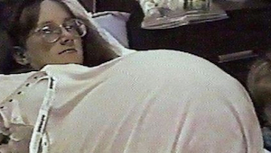 De vrouw begon hormonale therapie om zwanger te worden. Toen de dokter haar echo