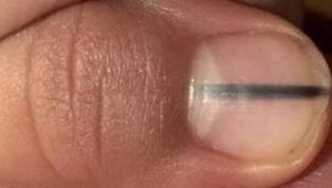 Schokkend: een schoonheidsspecialiste merkte een zwarte lijn op de nagel van een