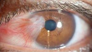 Bijna iedereen doet dit - duizenden mensen beschadigen per ongeluk hun zicht.