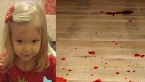 Een tweejarig meisje werd blauw en begon bloed op te hoesten. Even later overlee