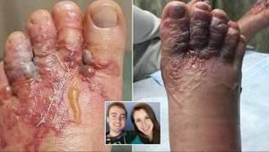 Wat er met hun voeten gebeurde nadat ze blootvoets over het strand hadden gelope