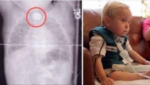 Toen hun zoon bloed begon te braken, wisten ze niet dat dit kwam doordat hij een