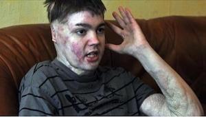 Wat er met deze 16-jarige jongen is gebeurd… Lees zijn verhaal, en u zult een tr
