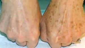 Hier een zeer eenvoudige manier om van huidverkleuringen af te komen! Geweldig!