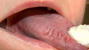 De 9 meest voorkomende veranderingen op je tong en wat ze betekenen.