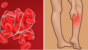 Trombose - een sluipmoordenaar. Leer de symptomen van trombose kennen!