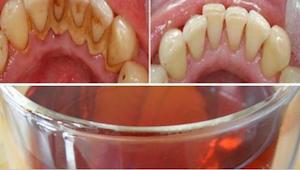 Als je mooie en schone tanden wilt, doe dan je mondwater de vuilnisbak in en pro