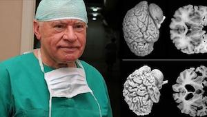 Neurochirurgen luiden aan de alarmbel. Elke vrouw moet deze feiten weten!