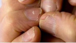 5 nagelproblemen die tekenen kunnen zijn van ernstige ziekte.