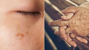 Alles wat je nodig is om zich te ontdoen van hyperpigmentatie heb je alemaal in