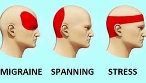 Onderzoeken hebben uitgewezen dat deze methode tegen hoofdpijn effectiever is da